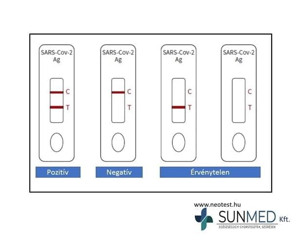 COVID-19 gyorsteszt ScheBo SARS-CoV-2 Quick ANTIGEN + UV lámpa START készlet