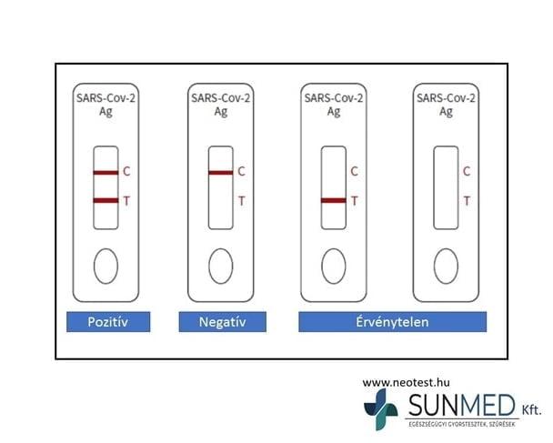 COVID-19 gyorsteszt ScheBo SARS-CoV-2 Quick ANTIGEN (25 teszt/doboz)