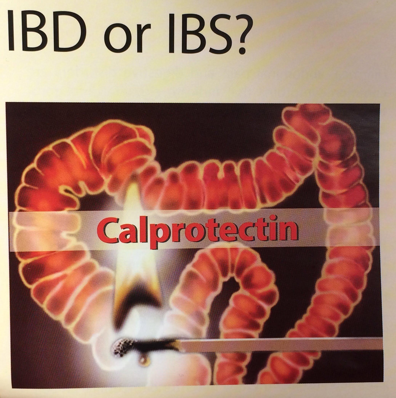 Calprotectin gyorsteszt (1 db) CalScreen