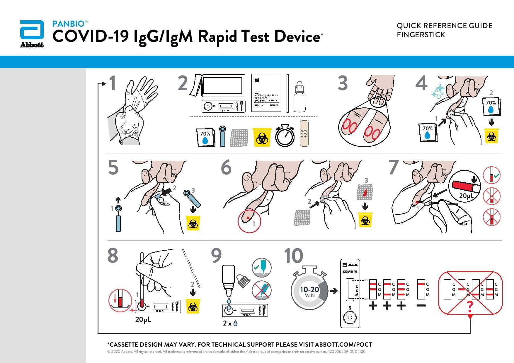 COVID-19 ellenanyag gyorsteszt - ABBOTT COVID-19 IgG/IgM Panbio (25 teszt/doboz)